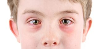 know about conjunctivitis